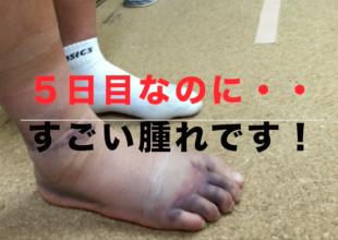 『強度の足首捻挫の腫れの回復・アイシングをしたのに腫れは変化しない』